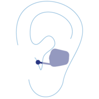 Im-Ohr-Geräte